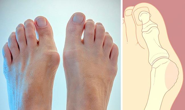 Растет и болит косточка на большом пальце ноги что делать причины лечение