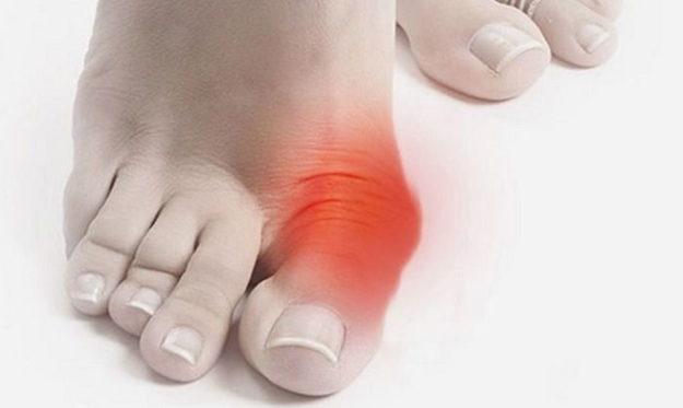 болит косточка на ноге возле большого пальца
