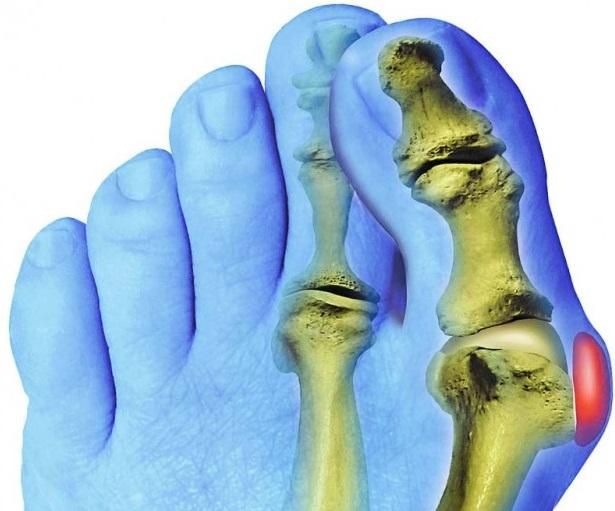 Болит косточка на большом пальце ноги лечение и устранение боли