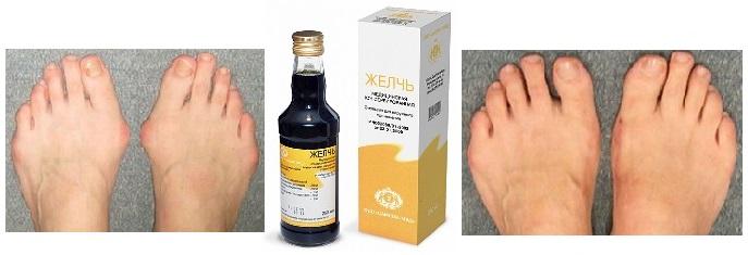 Лечение косточек на ногах медицинской желчью