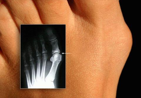 шишка на большом пальце