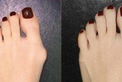 Что делать если появилась шишка на большом пальце
