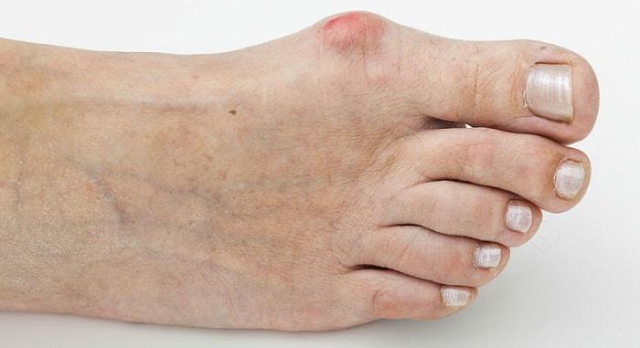 причины появления вальгусной деформации стопы