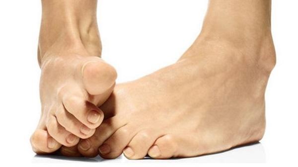 Ответы Что сделать чтобы не росли косточки на ногах