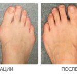 удаление шишки на ноге