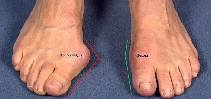 Виды хирургического вмешательства при Халюс вальгус