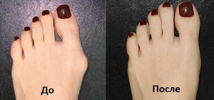 Каким способом выполняется операция по удалению шишки на ноге у большого пальца