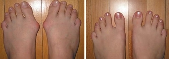 Упражнения после операции по поводу шишек на ногах