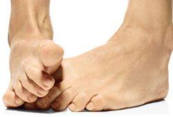 Удаление шишки на большом пальце ноги