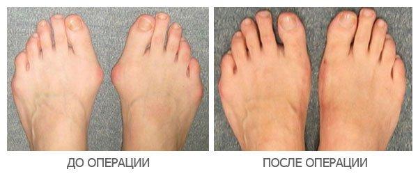 Операция удаления косточки на большом пальце ноги