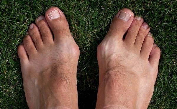Шишки (косточки) на ногах лечение в домашних условиях