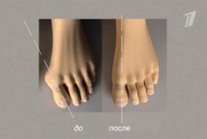 воспаление косточки на ноге